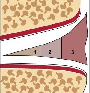 Einteilung Meniskus in weiße Zone ( keine Durchblutung), Übergangszone ( wenig Durchblutung) , rote Zone (gute Durchblutung)