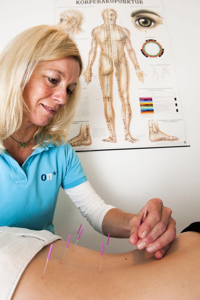Frau Heuwinkel bei der Akupunktur