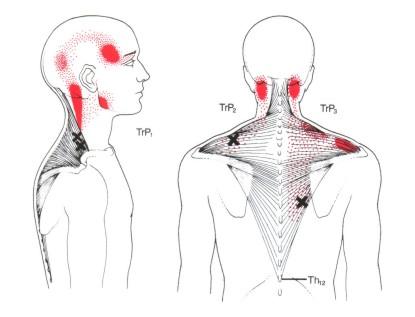 Triggerpunkte HWS M.trapezius